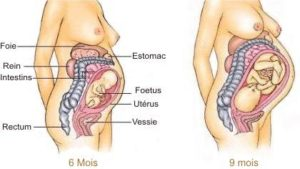causes de l'infection urinaire et grossesse