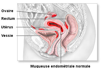 Comprendre l'endométriose