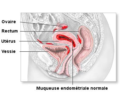 Comprendre l'endométriose